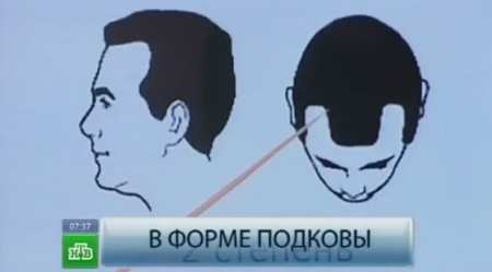 Генеролон для волос